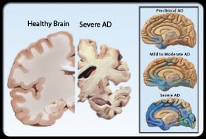 dementia_s6_healthy_brain_severe_ad